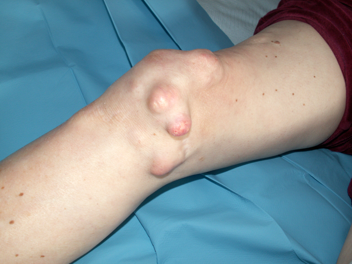 Dermatomyositis Picture Pictures Photos