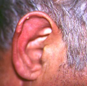 tophus ear